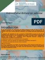 Hidrocefalia Disfunción Valvular