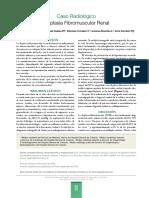 Caso Radiológico Displasia Fibromuscular Renal