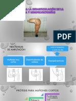 hemipelvectomia