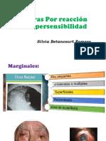 ulceras corneales.pptx