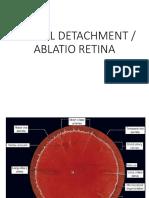 Ablatio Retina dr. Yanuar Sp.M.ppt