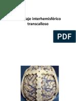 Abordaje interhemisferico