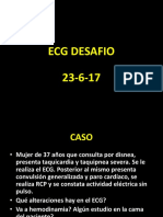 ECG Desafio 23-6-17 Resolución