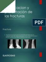 Clasificacion y Presentación de Las Fracturas