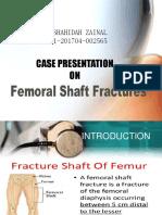 Femur Midshaft Fracture