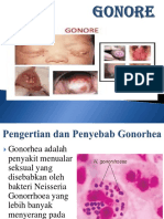 GONORE ppt.ppt