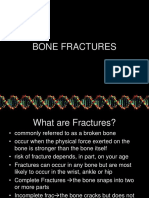 (Done)2. Bone Fractures