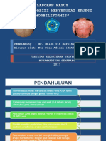 Klinis Morbili Menyerupai Eruspsi Morbiliformis