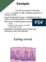 digestiv curs.ppt