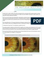 Cambios en El Iris-1-Iridología Reflejo Múltiple