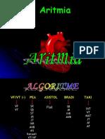 04 Aritmia