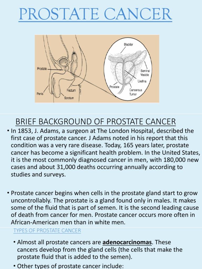 prostate cancer types ppt prostate cancer staging pathology outlines