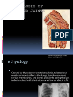 Tuberculosis of Bones and Joints