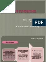 3. Meigs Syndrome