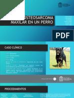 Osteosarcoma Maxilar