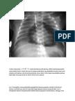 Cardiac Tamponade