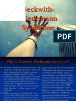 Beckwith Wiedemann Syndrome
