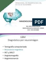 GLIOBLASTOMA 5.pptx