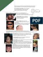 Signos en Genetica