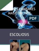 lesioneslumbaresmscomunes