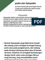 Hipospadia dan Epispadia Kuliah.pptx
