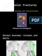 Acetabular Fractures