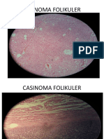 Adenoma Folikuler