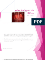 Neoplasias Malignas de Riñón