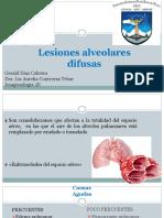 Lesiones alveolares difusas
