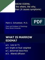 MR of Marrow Edema
