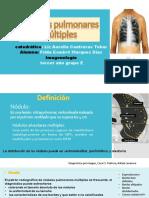 Nodulos-Alveolares Mulltiples,