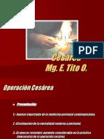 26.-CESÁREA