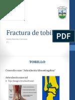 Fractura de Tobillo Karina