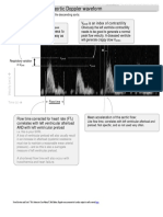 Interpretation of the Aortic Doppler Waveform