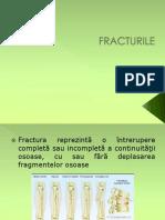 Lp 9 Fracturile