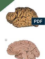 A. Imagenes anatomicas del encefalo.pdf