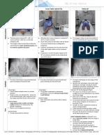 X-ray Views Hip