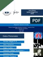67105165 EPOC Caso Clinico