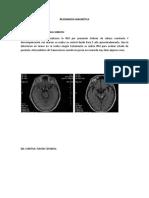 Irm- Cerebro Con Gadolineo