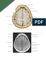 potongan otak