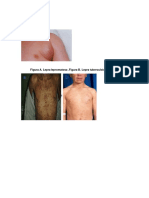 Linfadenitis supurativa