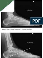 angulos ortopedia