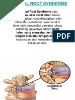 Cervical RootSyndrome Ppt