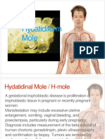 Hydatidiform Mole Re