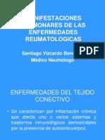 24enfermedadesconectivasypulmon-100826164718-phpapp01