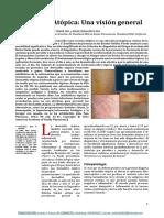 Dermatitis Atópica ESPAÑOL