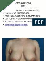 casos clinicos mama y pared toraxica 2017.pdf