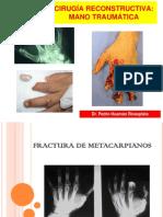 Especialidades I - Cirugía Reconstructiva - Mano Traumática