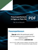 pneumoperitonium