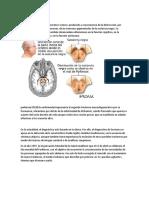 Qué Es El Parkinson